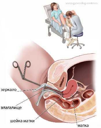 Химическая деструкция эрозии шейки матки препаратом солковагин