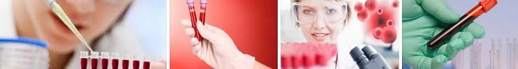 Лаборанты проводят тестирование крови на гепатиты Б и С