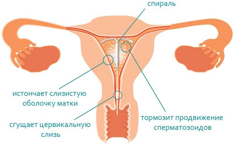 Мешает ли спираль при сексе — pic 15