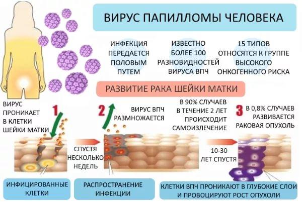 hpv virus zena