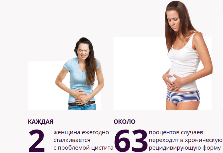Причины симптомы лечение и профилактика цистита